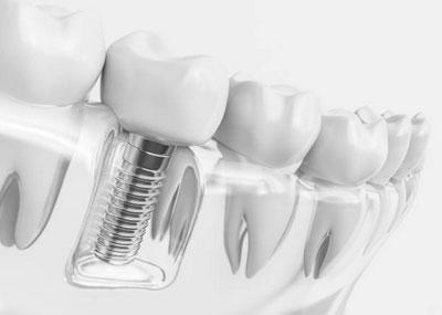 Dental Implant Restorations in Casa Grande, AZ - Yang and Horsley Dentistry