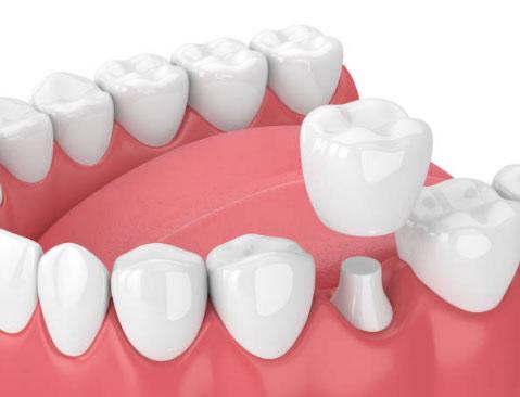 Dental Crowns in Casa Grande, AZ - Yang and Horsley Dentistry